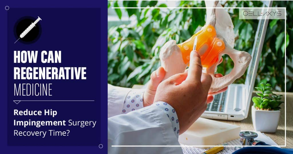 How Regenerative Medicine Can Reduce Hip Impingement Surgery Recovery Time?