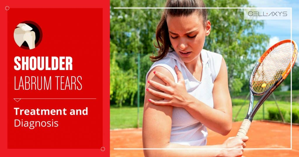 Shoulder Labrum Tears: Treatment and Diagnosis